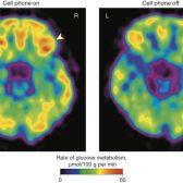 קרינה סלולרית ומוח האדם .. סיפור בתמונות