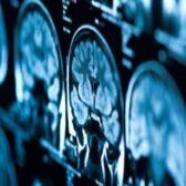 עוד משפחה נגמרת מסרטני מוח - מהסוג שנקשר לקרינה מהסלולר
